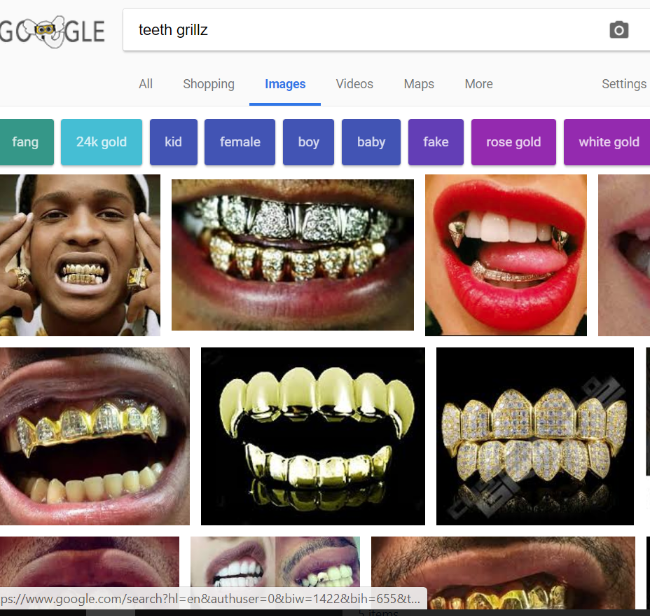 teeth-grillz1